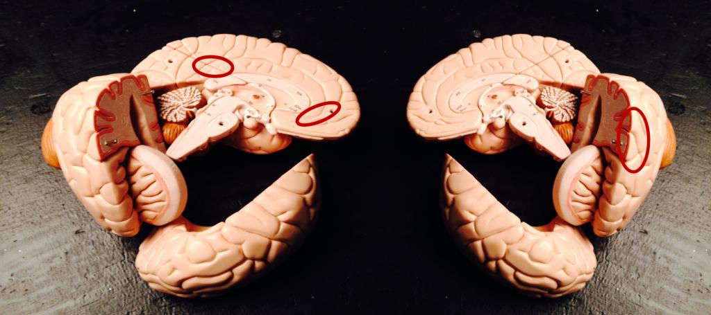 Figur 1. Det social-kognitive netværk - sådan nogenlunde. Parasingularis (forrest på venstre hjerne). Bagerste del af Korteks Singularis og Precuneus, samt Superior Temporal Sulcus (STS på højre hjerne). Min illustration.