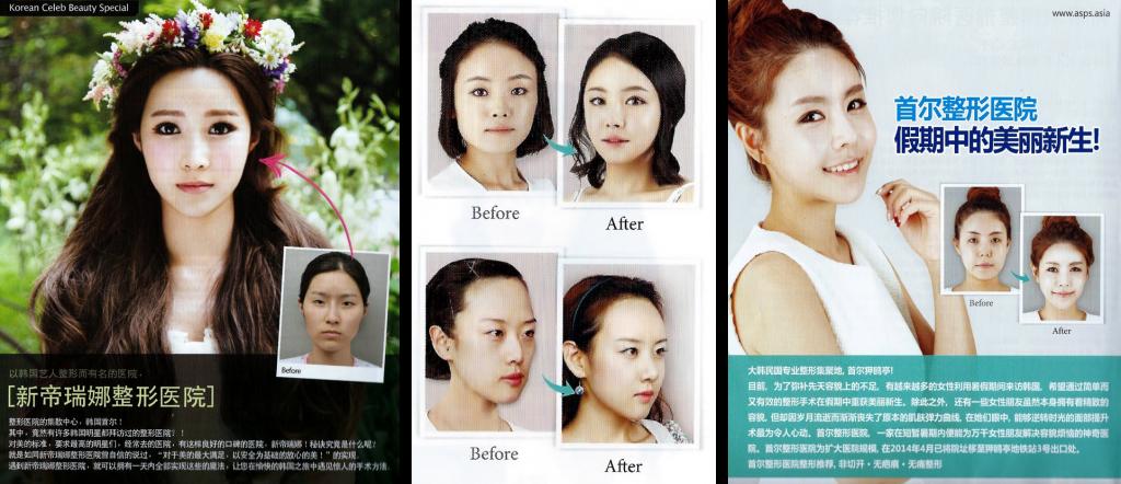 """Reklamer for plastikkirurgi i Sydkoreansk Shopping-guide. I Sydkorea er det forholdsvist normalt at få ændret øjenformen og rettet lidt på næsen og hagen, angiveligt for at komme til se mere """"vestligt"""" ud. Det siges - vel nok en kende overdrevet - at ikke en studievært, film- eller K-pop-stjerne i det fashionable Gangnamkvarter kan undgå kniven og holde sig på toppen."""